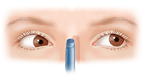 illustration of child's eyes unable to converge to focus inward on a pen near the nose